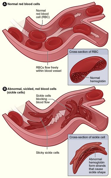 Difference Between Sickle Cell Disease and Sickle Cell Anemia   Sickle Cell Disease vs Sickle Cell Anemia